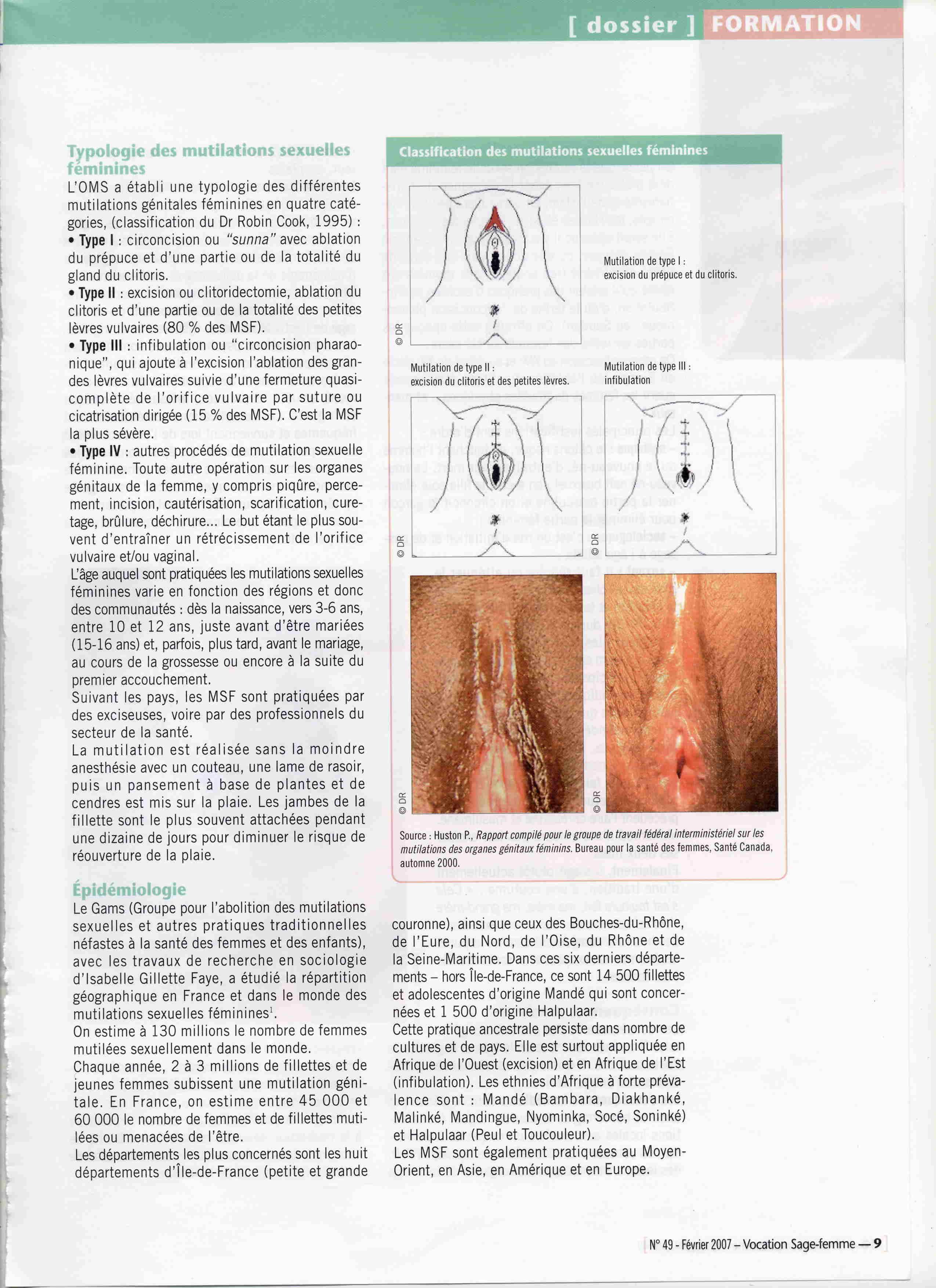 81ff081dfdc8 Articles de presse - GSF Gynécologie Sans Frontières